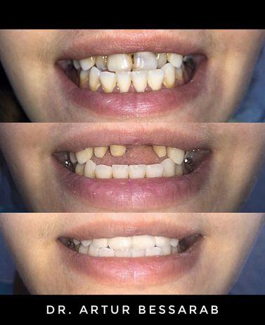 Стоматолог | Протезирование зубов | Лечение зубов | Харьков