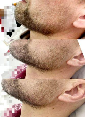 Увеличение губ. Врач-косметолог
