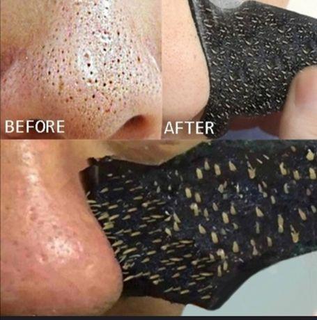 Limpeza Pele, Elimina acne e cravos