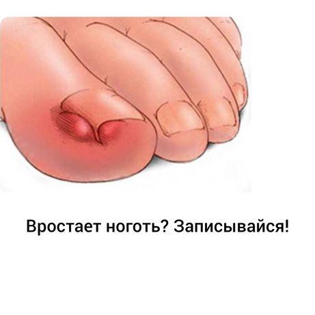 Вросший ноготь? Подолог Киев Позняки