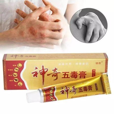 Na łuszczycę egzemę świąd azs problemy skórne chińska maść yiganerjing