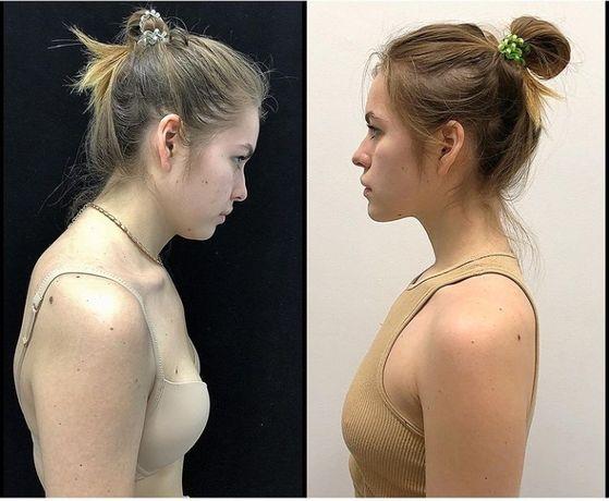 Прикладна кінезіологія , реабілітація, масаж Гуа-ша