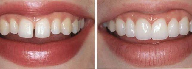 Стоматолог. Лечение и протезирование зубов взрослых/детей.