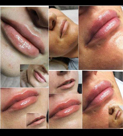 Powiększanie ust, wypełnianie zmarszczek ,mezoterapia