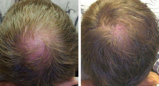 Врач Трихолог. Лечение волос. Мезотерапия волос 650грн