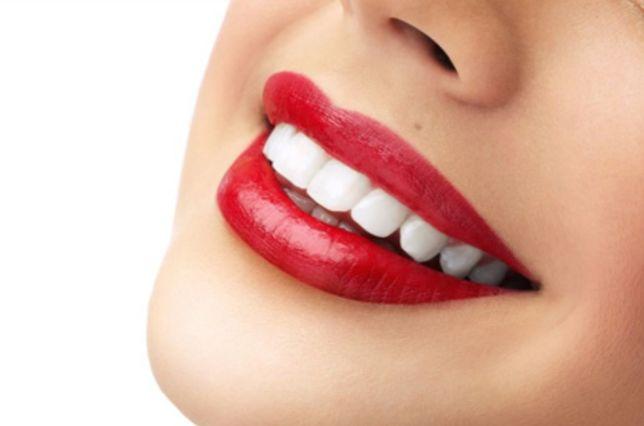 Профессиональное Отбеливание Зубов:АКЦИЯ. 1999-3499грн вместо 4000грн.