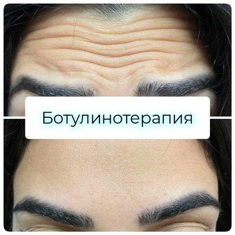 Ботулинотерапия. Опытный врач-косметолог Одесса. Скидка -29%.