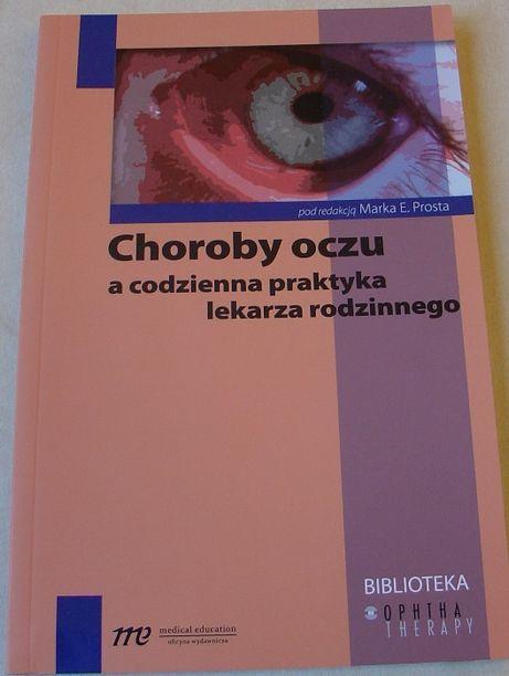 Choroby oczu a codzienna praktyka lekarza rodzinnego M.Prost