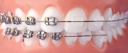 Стоматолог-ортодонт, брекеты Киев
