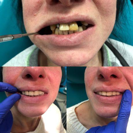 Лечение зубов у стоматолога интерна 2 года обучения.