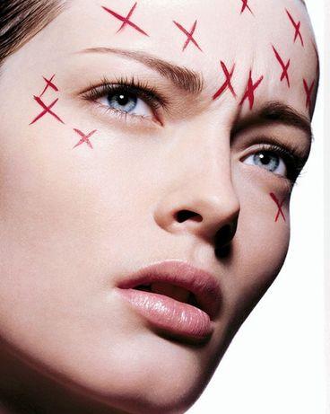 Botox e ácido hialuronico