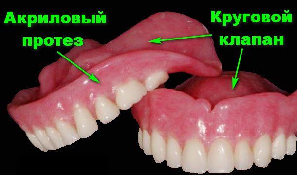 Починка зубных протезов