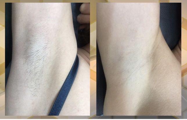 Лазерная эпиляция!Глубокое бикини+п/м450грн и ноги полностью- 600 грн!