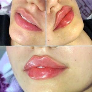 Увеличение губ АКЦИЯ 2700грн,Botox,Ботокс,биоревитализация