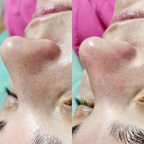 Чистка лица. Косметолог