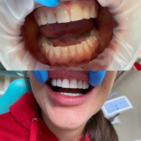 Естетична стоматологія, реставрація, терапія, чистка