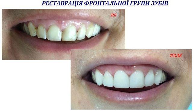 Стоматолог для Вас Чернівці**БЕЗКОШТОВНА КОНСУЛЬТАЦІЯ**