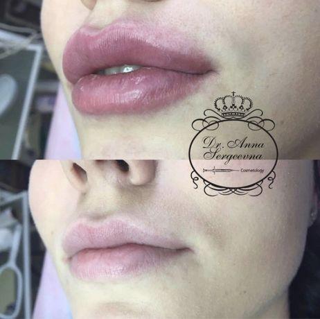 Увеличение губ(контурная пластика),косметолог