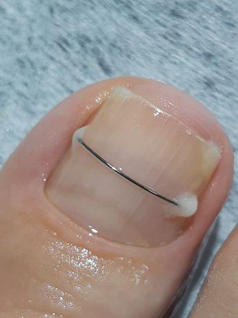 Подология. Коррекция вросших и деформированных ногтей