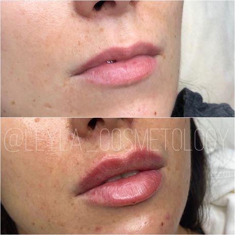 Увеличение Губ.Лазерная эпиляция.Чистка лица,PRX-T33,Оболонь