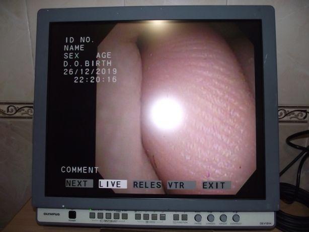 Монитор Olympus OEV-191H (эндоскопия, лапароскопия)