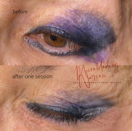 Nielaserowe usuwanie makijazu permanentnego oraz tatuazu metoda z USA