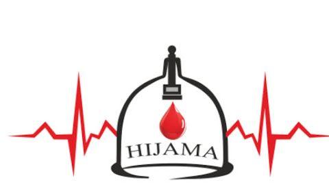 Хиджама ( hijama, cupping therapy)