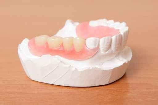 Consertos e Reparações de Próteses Dentárias (URGENTES)