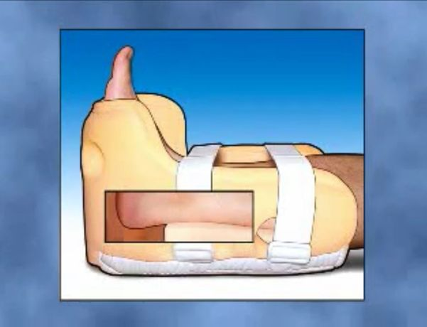 Heelift standard but ortopedyczny orteza