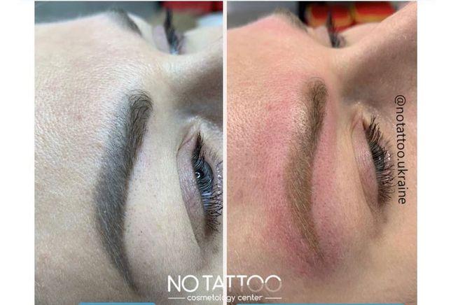 Лазерное удаление татуажа/перманентного макияжа бровей, век, губ