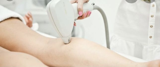 laser depilação diodo