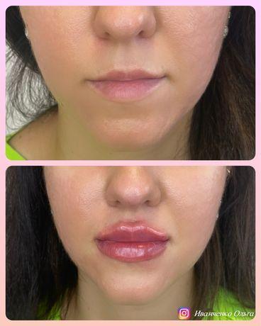 Косметолог , контурная пластика губ