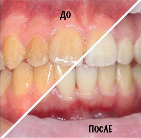 • Профессиональная гигиена полости рта (чистка зубов)