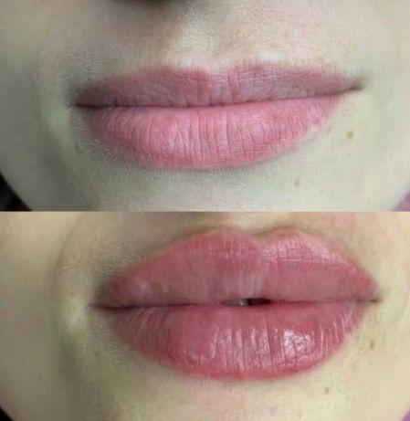Увеличение губ. Врач-косметолог, ботокс, радиесс, профиль джоли