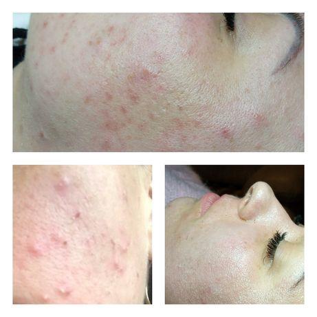 Косметолог, лечение акне, пилинги, профессиональная чистка лица.