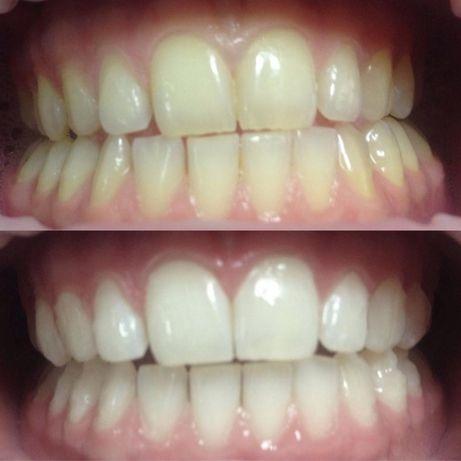 """Отбеливание и чистка зубов.Стоматология"""" Зубная фея"""" 6-я ст.Б.Фонтана"""