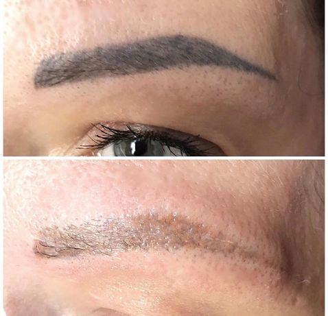 Лазерное удаление тату, перманентного макияжа, карбоновый пилинг