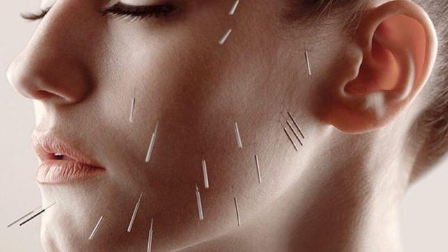 Косметолог. Избавление морщин без ботокса