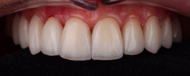 Услуги зубного техника