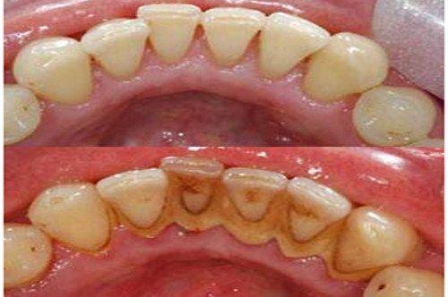 Профессиональная чистка зубов. Снятие зубных отложений. 500 грн.
