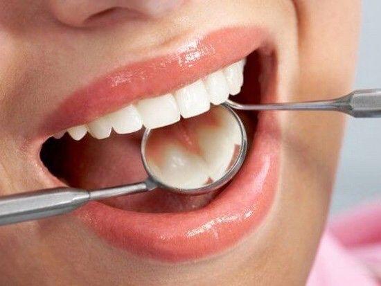 Профессиональная гигиена полости рта (чистка зубов)