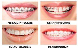 """Скидка до 60% на установку брекет-системы в клинике «Ваш стоматолог"""""""