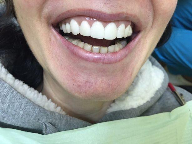 Зуботехническая лаборатория предлогает свои услуги