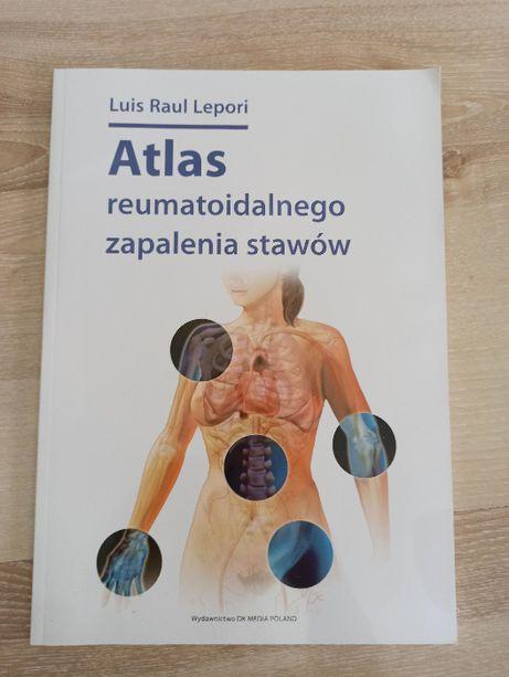 Atlas reumatoidalnego zapalenia stawów RZS, Lepori