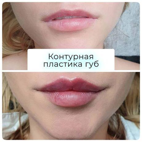 Увеличение губ, контурная пластика. Опытный врач-косметолог Одесса.