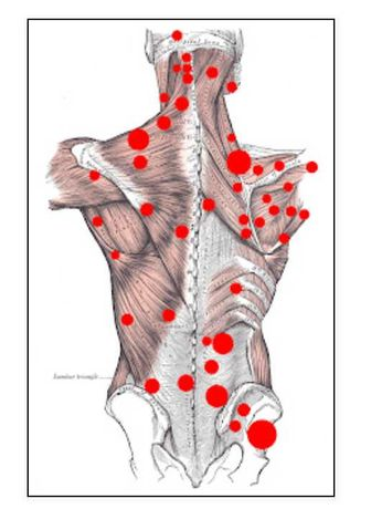 Massagem Terapêutica para Dores