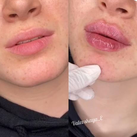 Увеличение губ , косметолог с высшим медицинским образованием