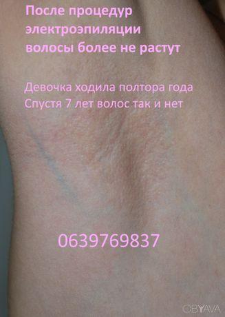 Электроэпиляция - избавление от волос навсегда, пос Котовского, Одесса