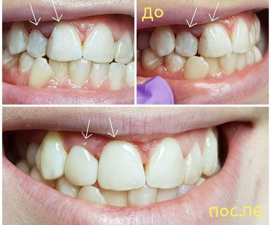 Реставрации зубов,виниры, коронки . Центр