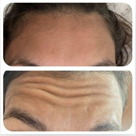 Botox e acido hialuronico